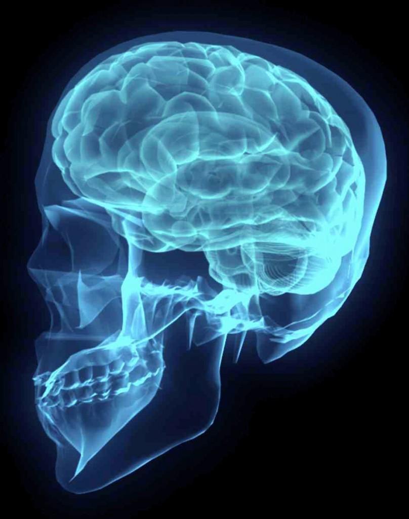 Röntgenbild av skalle och hjärna